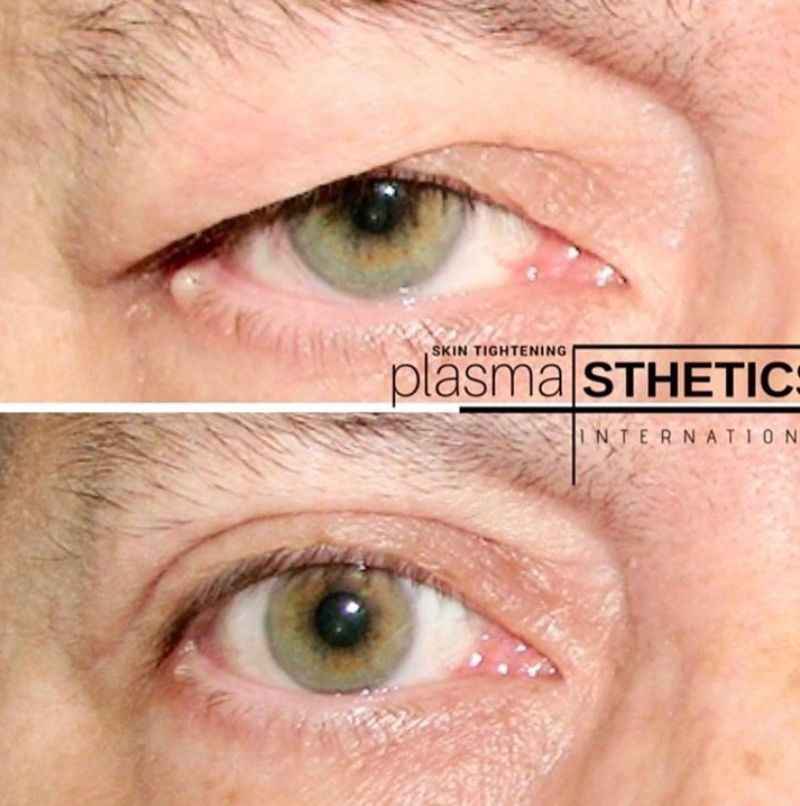 Plasma Pen - resize (12)