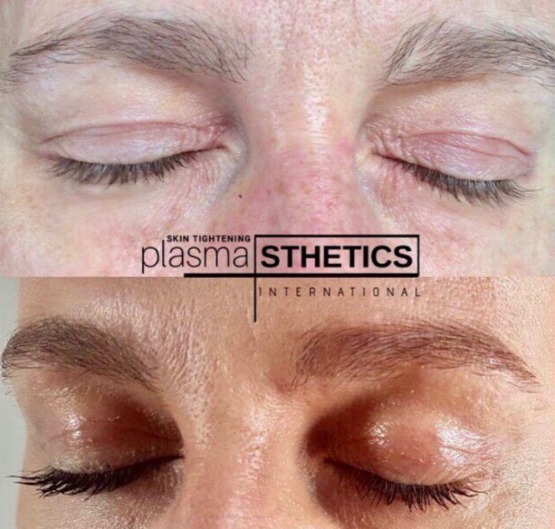 Plasma Pen - resize (15)