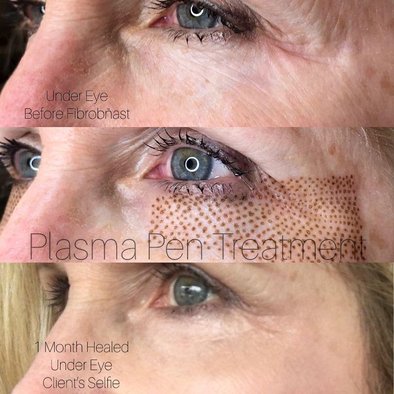Plasma Pen - resize (16)